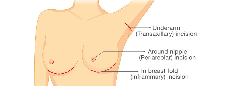 breast implant surgery - informational diagram