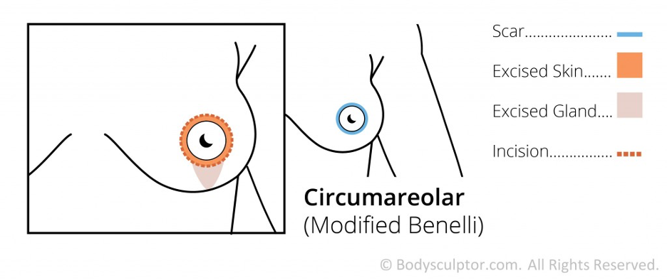 breast lift incision and scaring diagram